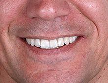 Izgled u ustima pacijenta prirodan osmeh