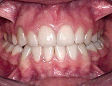 Condition after a combined surgical-ortodontic treatment