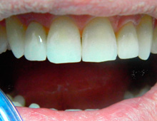 Correction using veneers on lateral incisors