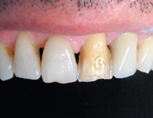 Color change in the treated left central incisor, ground for the placement of the veneer