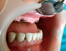 Same pacient – unfavourable relation between the upper and the lawer jaw