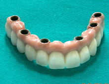 Completed metal ceramic circular bridge for the upper jaw