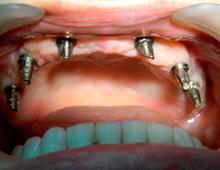 Installed suprastructures – Straumann implant system